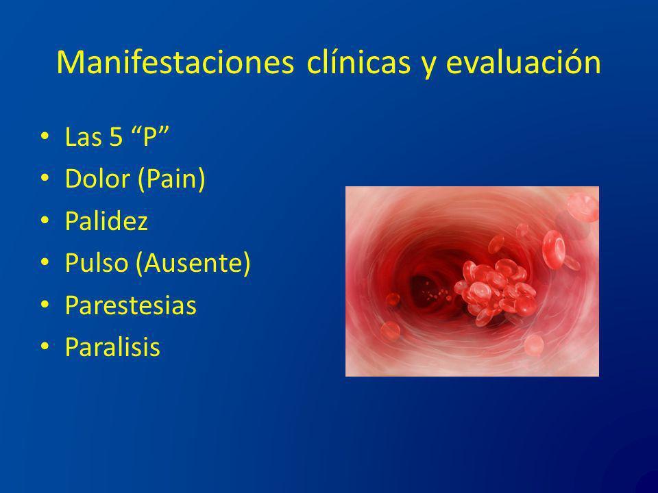Manifestaciones clínicas y evaluación Las 5 P Dolor (Pain) Palidez Pulso (Ausente) Parestesias Paralisis