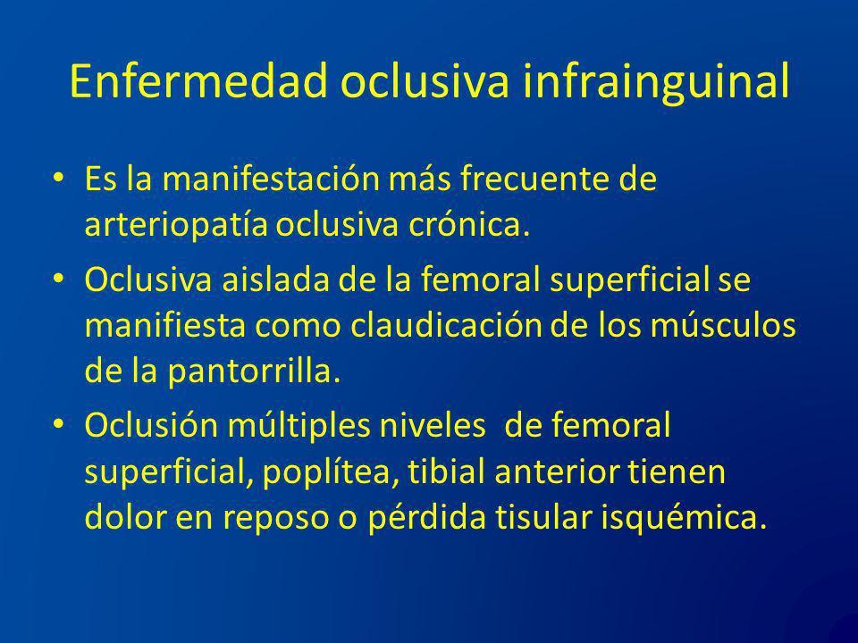 Enfermedad oclusiva infrainguinal Es la manifestación más frecuente de arteriopatía oclusiva crónica. Oclusiva aislada de la femoral superficial se ma