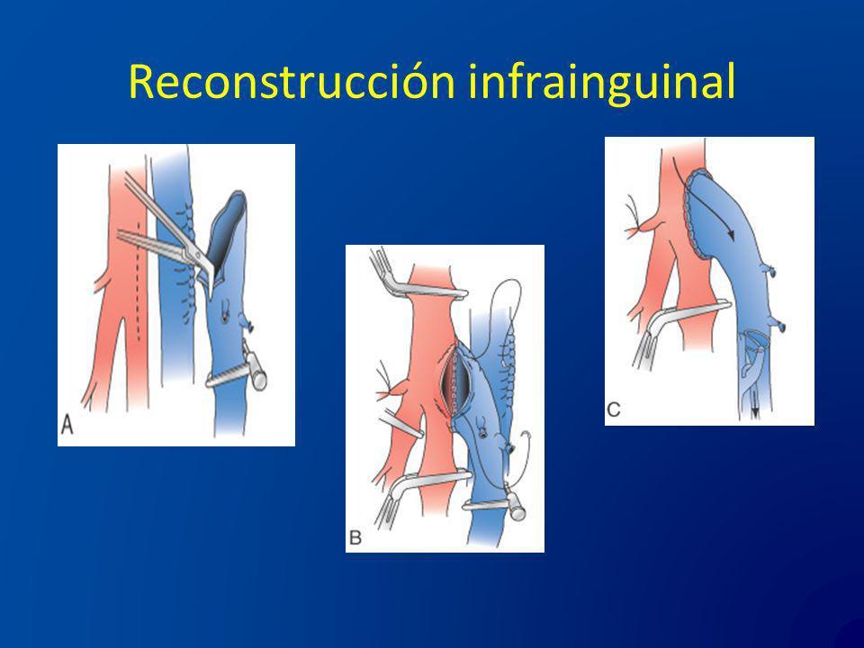 Reconstrucción infrainguinal