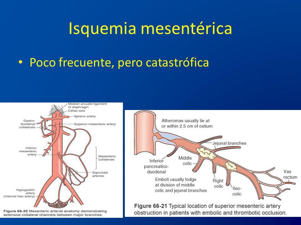 Isquemia mesentérica Poco frecuente, pero catastrófica