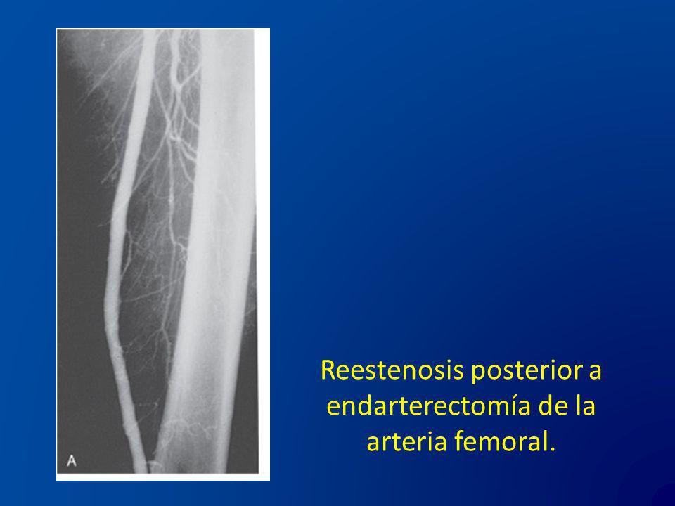 Reestenosis posterior a endarterectomía de la arteria femoral.