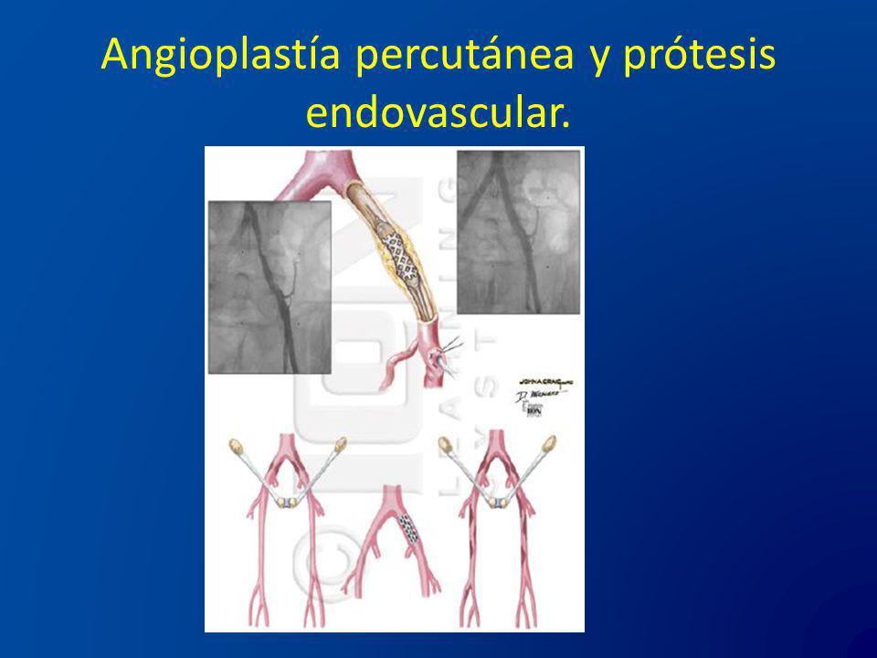Angioplastía percutánea y prótesis endovascular.