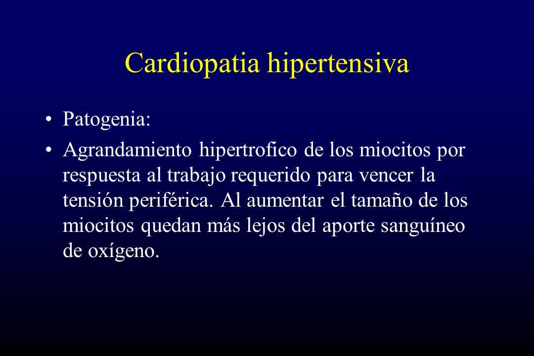 Cardiopatia hipertensiva Patogenia: Agrandamiento hipertrofico de los miocitos por respuesta al trabajo requerido para vencer la tensión periférica. A