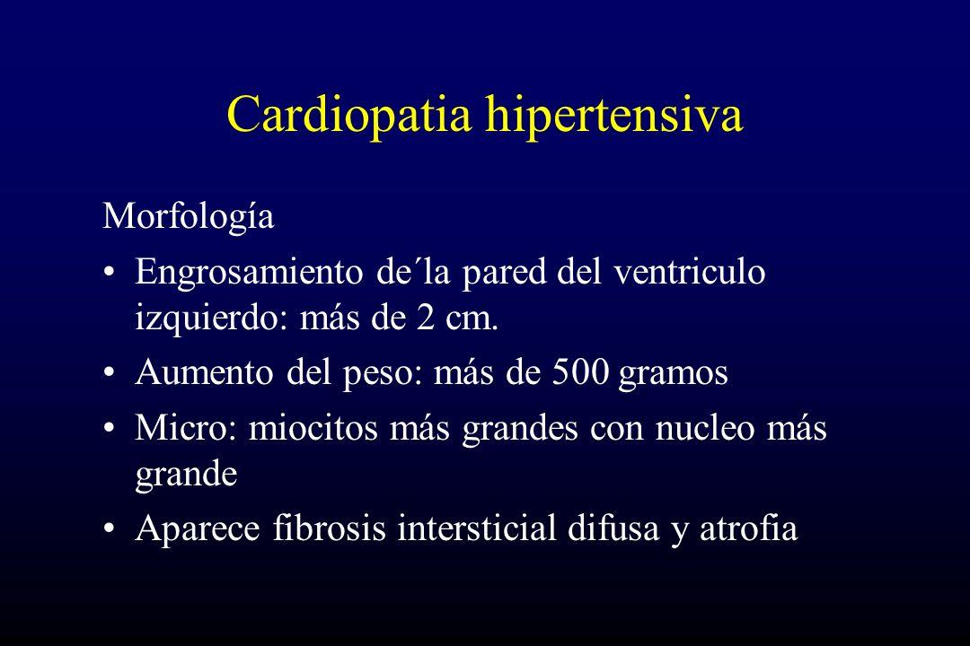 Cardiopatia hipertensiva Morfología Engrosamiento de´la pared del ventriculo izquierdo: más de 2 cm. Aumento del peso: más de 500 gramos Micro: miocit