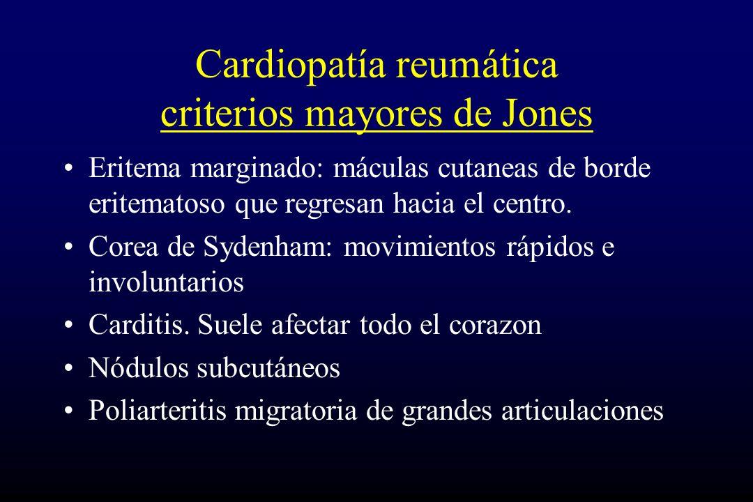 Cardiopatía reumática criterios mayores de Jones Eritema marginado: máculas cutaneas de borde eritematoso que regresan hacia el centro. Corea de Syden