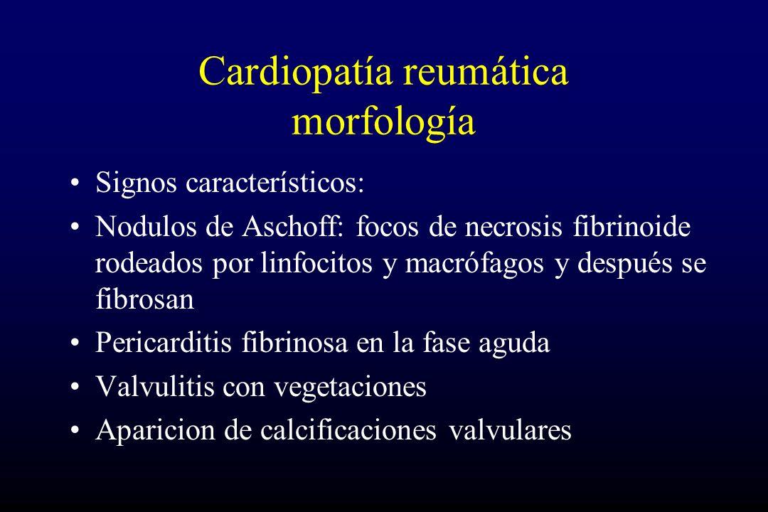 Cardiopatía reumática morfología Signos característicos: Nodulos de Aschoff: focos de necrosis fibrinoide rodeados por linfocitos y macrófagos y después se fibrosan Pericarditis fibrinosa en la fase aguda Valvulitis con vegetaciones Aparicion de calcificaciones valvulares