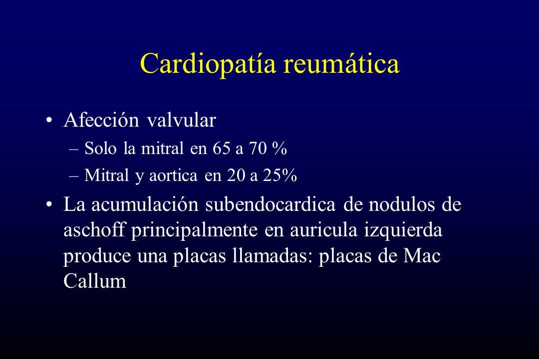 Cardiopatía reumática Afección valvular –Solo la mitral en 65 a 70 % –Mitral y aortica en 20 a 25% La acumulación subendocardica de nodulos de aschoff principalmente en auricula izquierda produce una placas llamadas: placas de Mac Callum