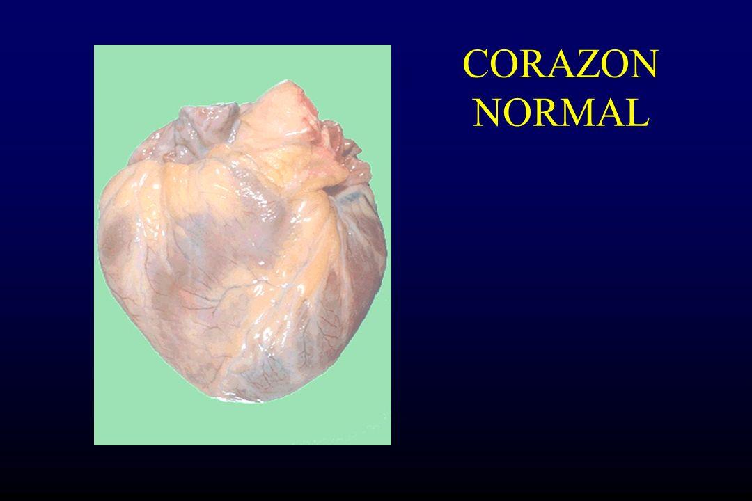 Cardiopatia hipertensiva Criterios diagnósticos: Hipertrofia ventricular izquierda Antecedentes de HTA Ausencia de otras alteraciones que pudieran dañar al corazon.