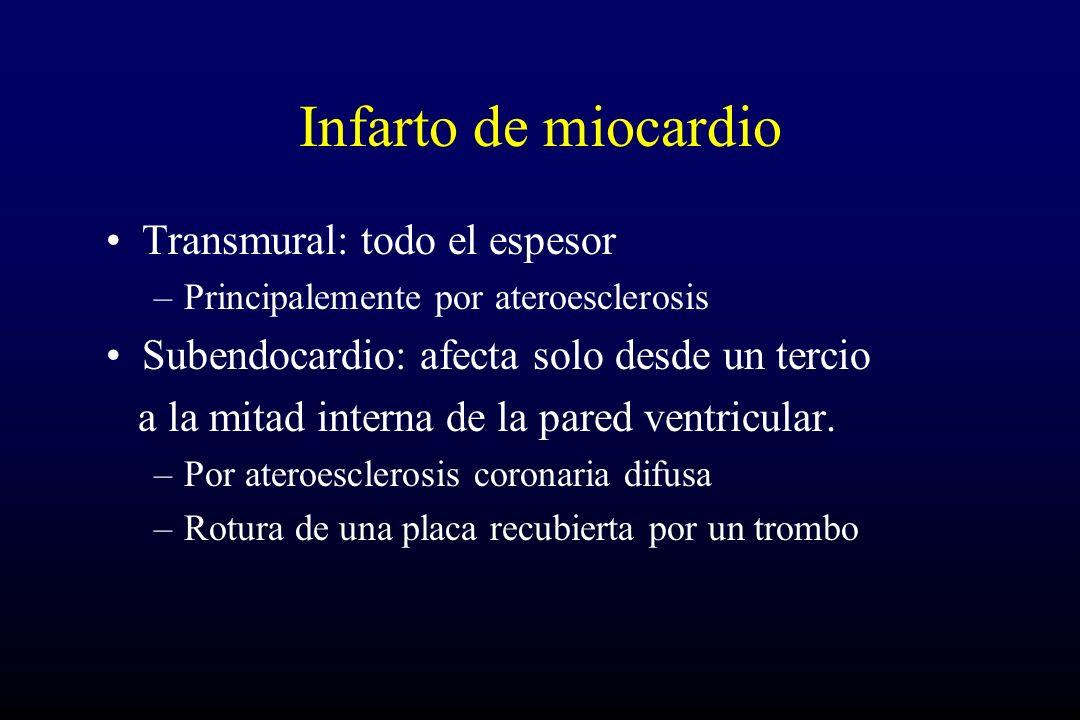 Infarto de miocardio Transmural: todo el espesor –Principalemente por ateroesclerosis Subendocardio: afecta solo desde un tercio a la mitad interna de la pared ventricular.