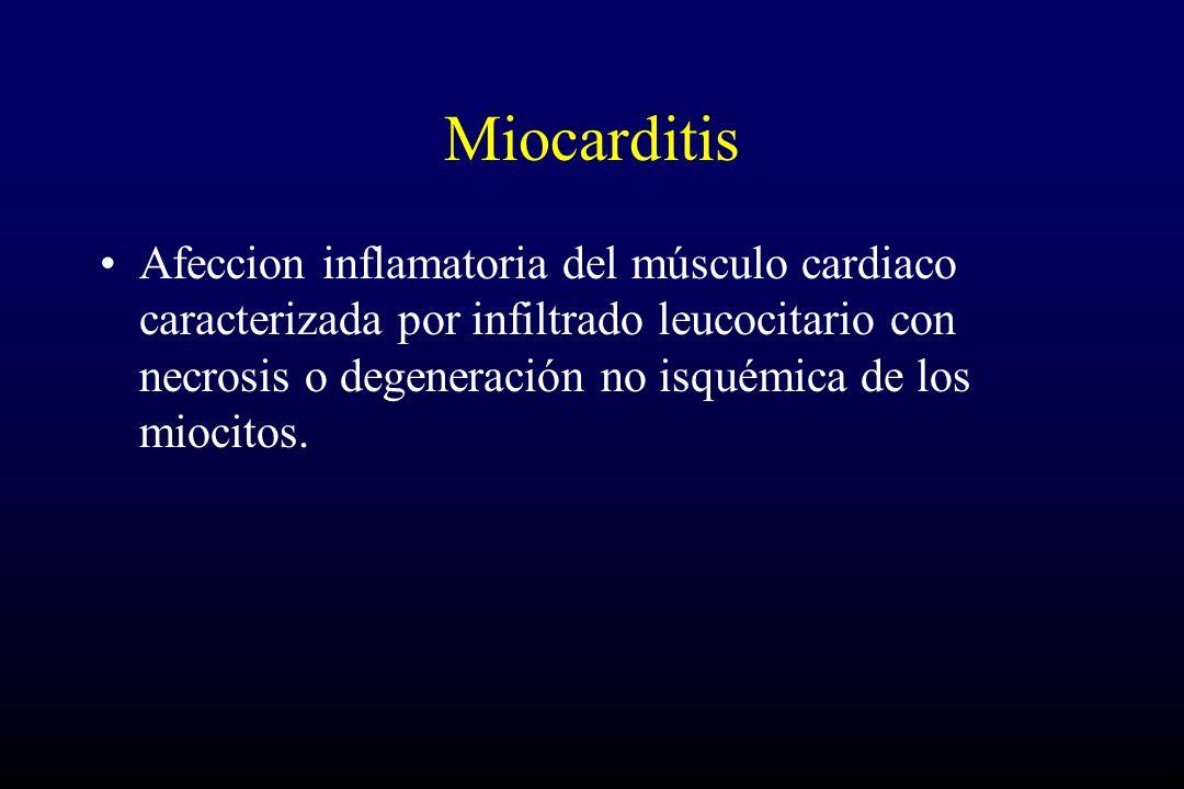 Miocarditis Afeccion inflamatoria del músculo cardiaco caracterizada por infiltrado leucocitario con necrosis o degeneración no isquémica de los mioci
