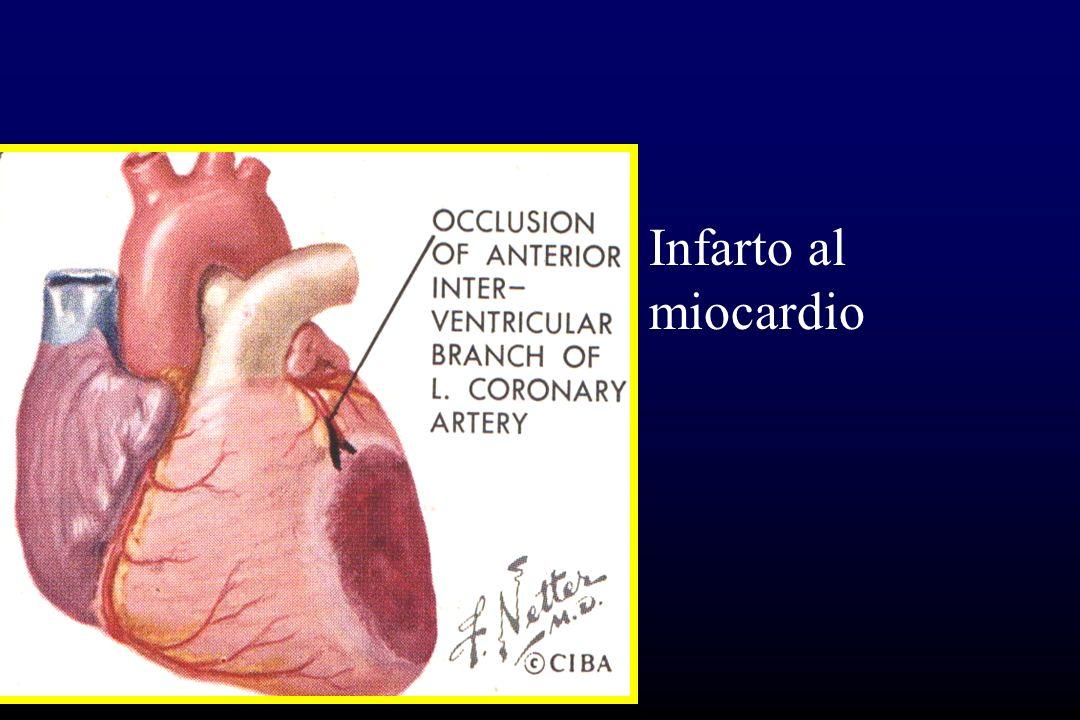 Cardiopatia hipertensiva Morfología Engrosamiento de´la pared del ventriculo izquierdo: más de 2 cm.