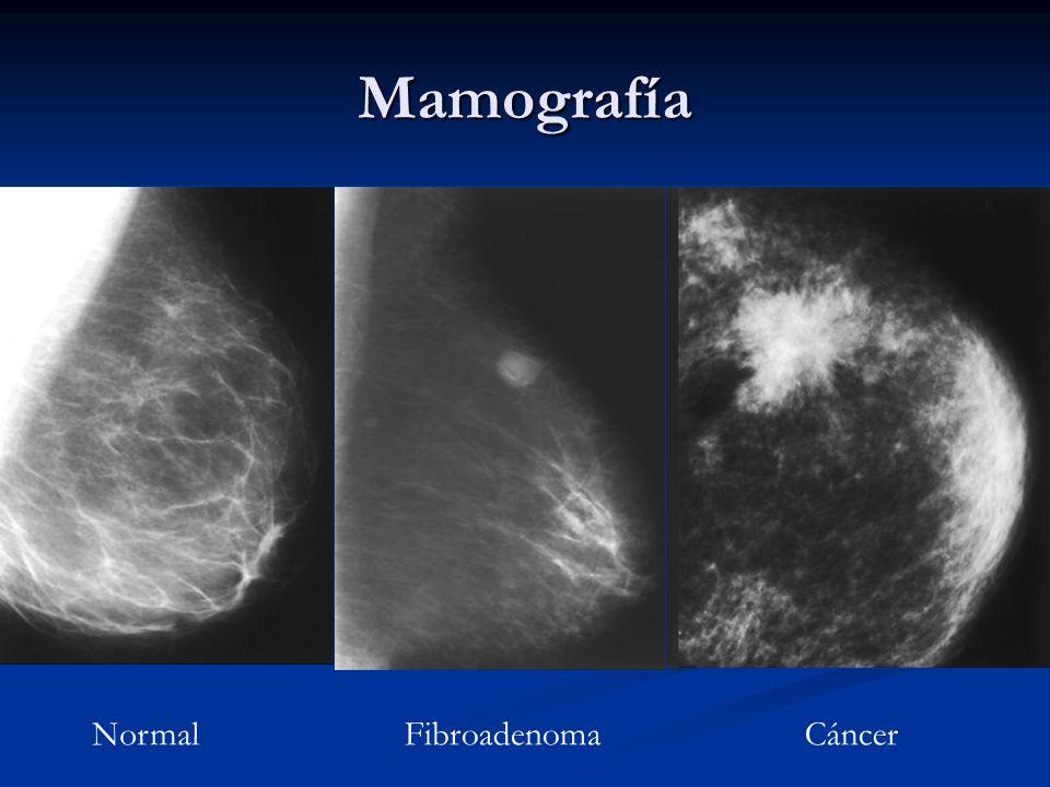 Signos Mamográficos Nódulo Nódulo Masa Masa Microcalcificaciones Microcalcificaciones Deformidad del parénquima Deformidad del parénquima Asimetría As