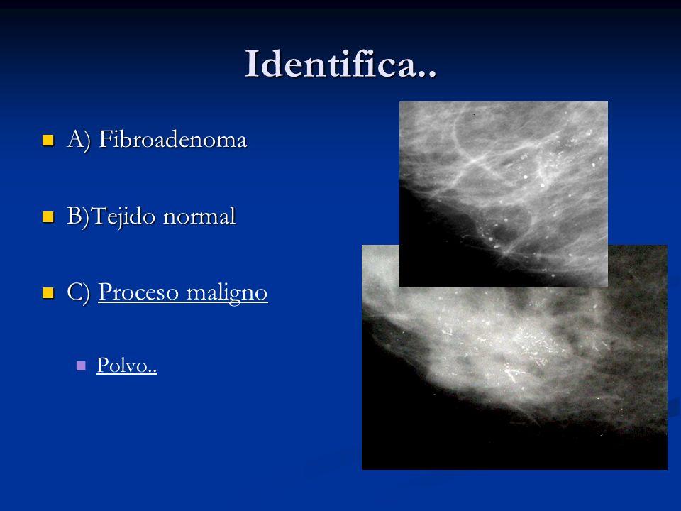 Identifica.. A) Fibroadenoma A) Fibroadenoma B)Tejido normal B)Tejido normal C) Proceso maligno C) Proceso maligno