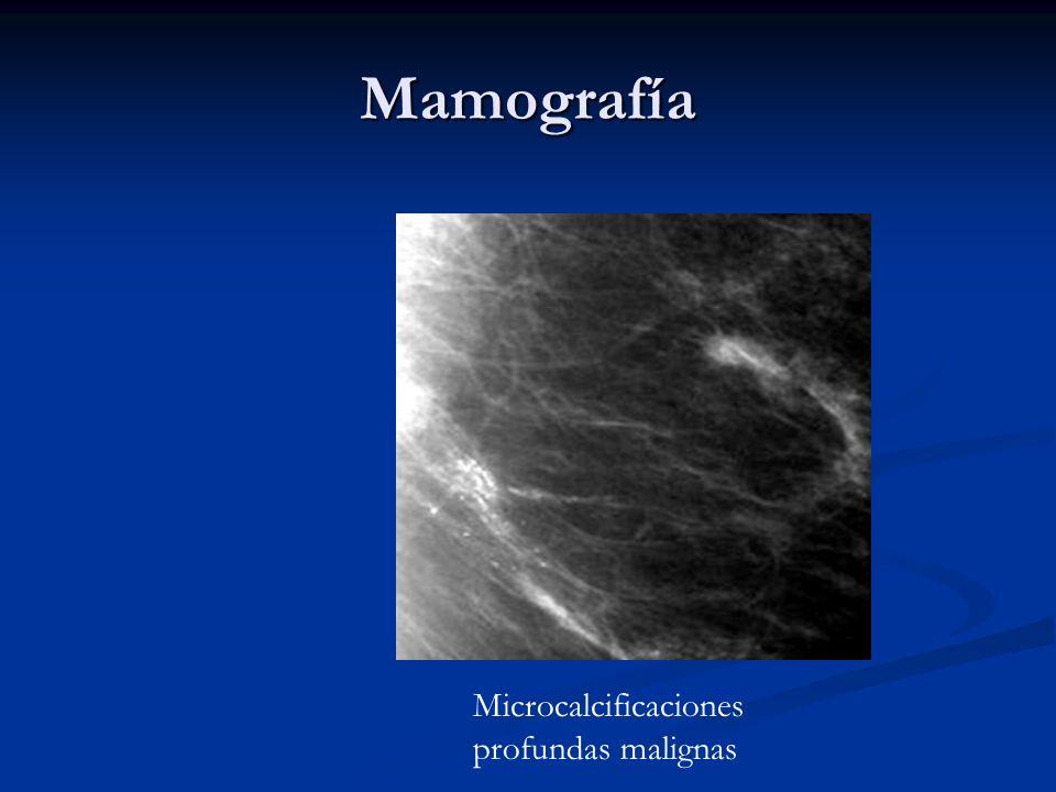 Identifica.. A) Fibroadenoma A) Fibroadenoma B)Tejido normal B)Tejido normal C) C) Proceso maligno Polvo..