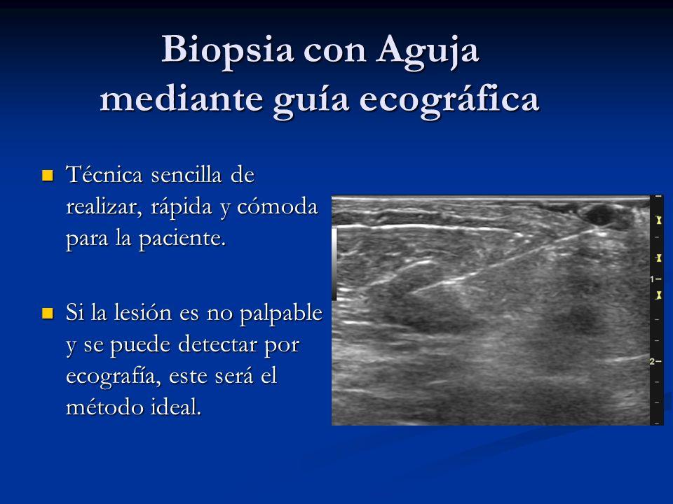 Procedimientos de Intervención Biopsia por estereotaxia Biopsia por estereotaxia Biopsia con guía ecografica Biopsia con guía ecografica Localización