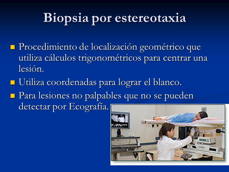 Biopsia con Aguja mediante guía ecográfica Técnica sencilla de realizar, rápida y cómoda para la paciente. Técnica sencilla de realizar, rápida y cómo