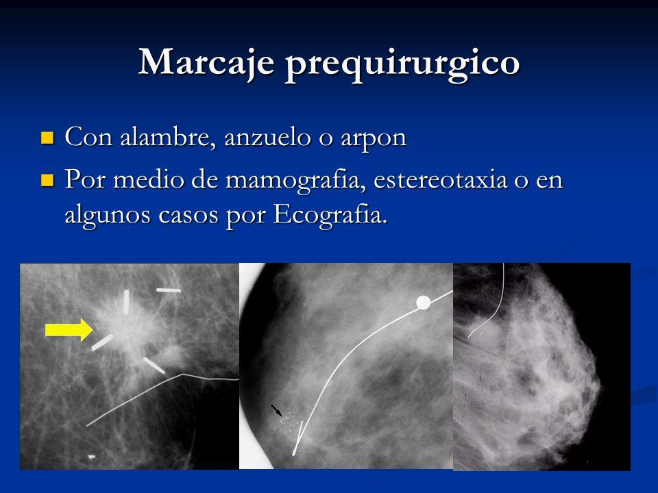 Biopsia por estereotaxia Procedimiento de localización geométrico que utiliza cálculos trigonométricos para centrar una lesión. Procedimiento de local