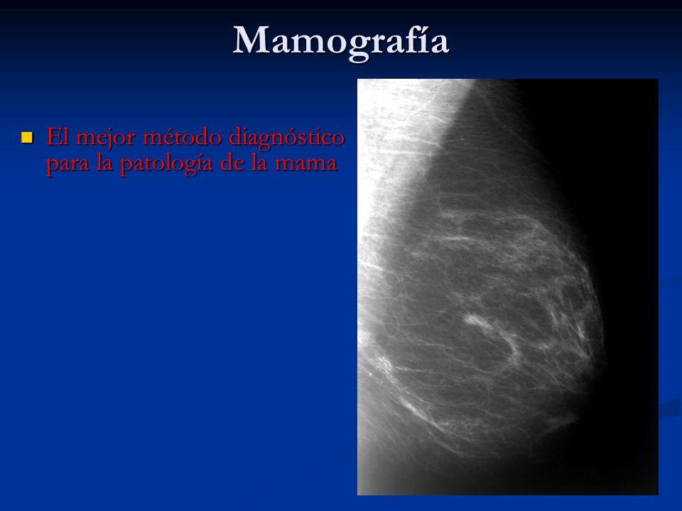 Corresponde a un fibroadenoma.. A) Quiste B) Cáncer C) Fibroadenoma