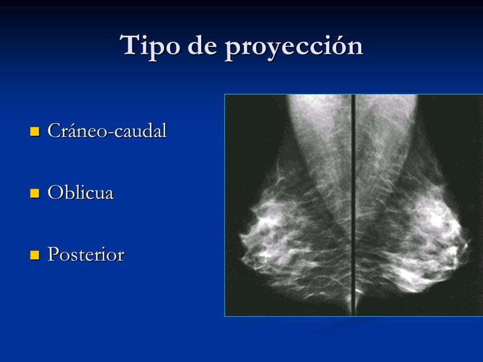 BIRADS 5 Lesión maligna Se recomienda excision Biopsia percutánea antes de una cirugía definitiva del cáncer