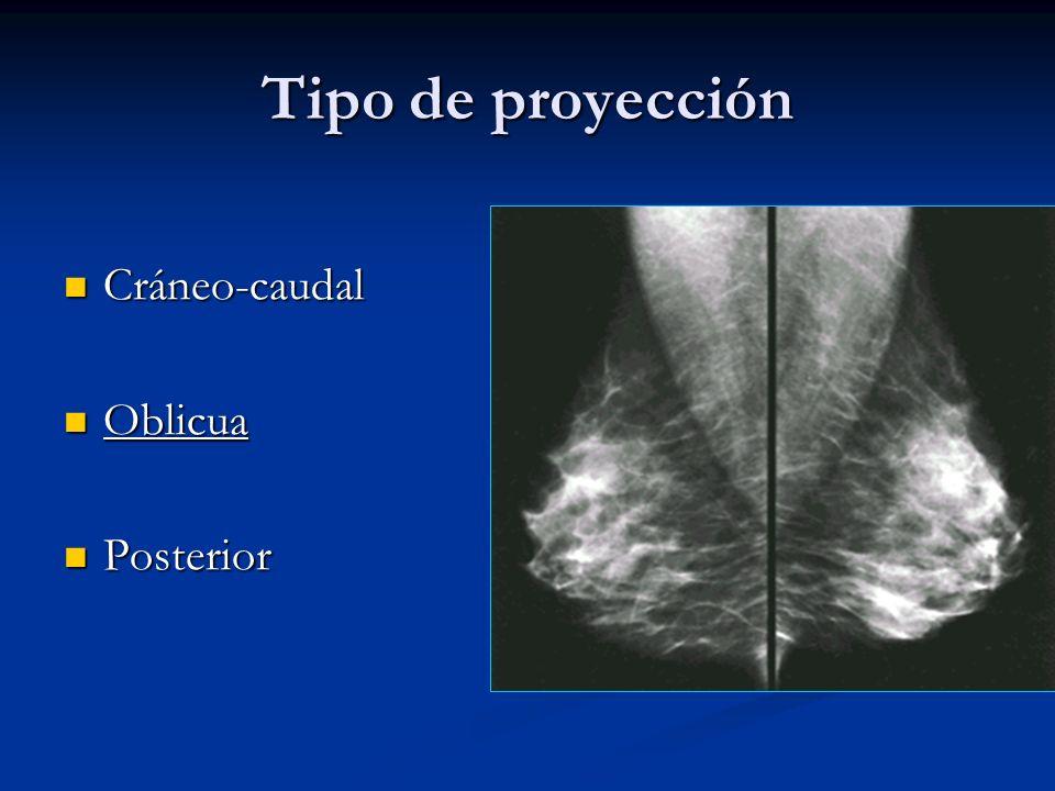Tipo de proyección Cráneo-caudal Oblicua Posterior