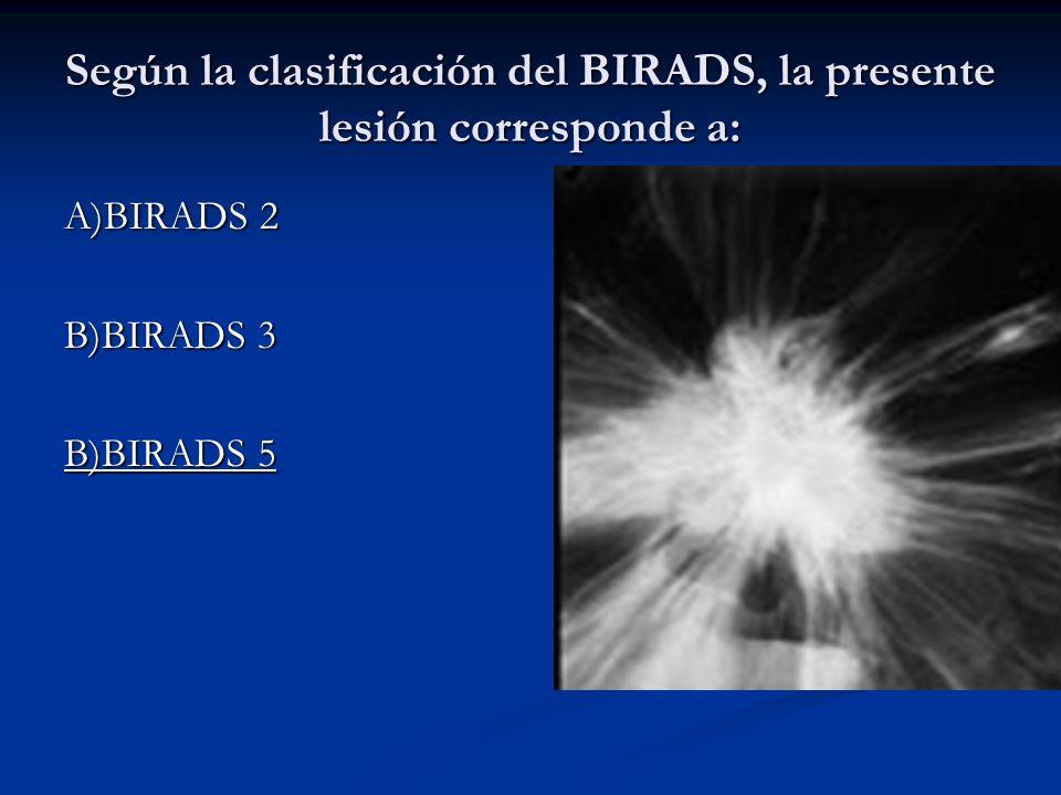 Según la clasificación del BIRADS, la presente lesión corresponde a: A)BIRADS 2 B)BIRADS 3 B)BIRADS 5