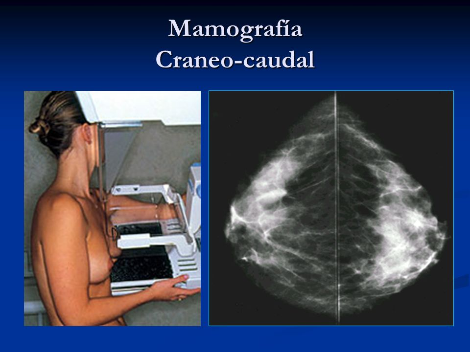 Mamografía Craneo-caudal