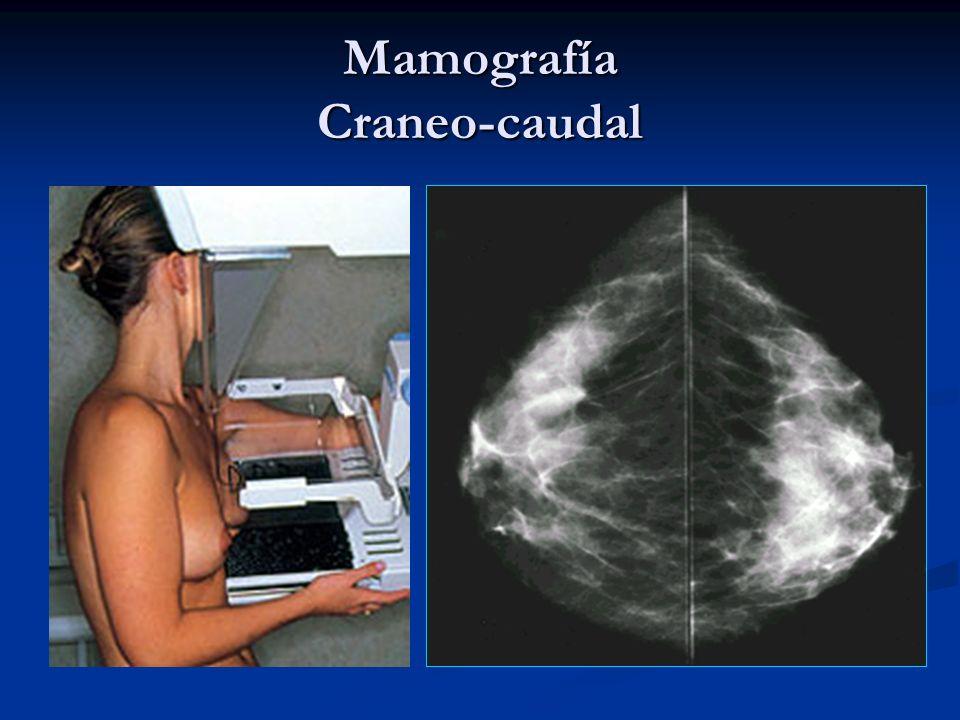 Carcinoma Ductal in situ 75% se manifiestan como microcalcificaciones 75% se manifiestan como microcalcificaciones Molde Piedra destruida Polvo