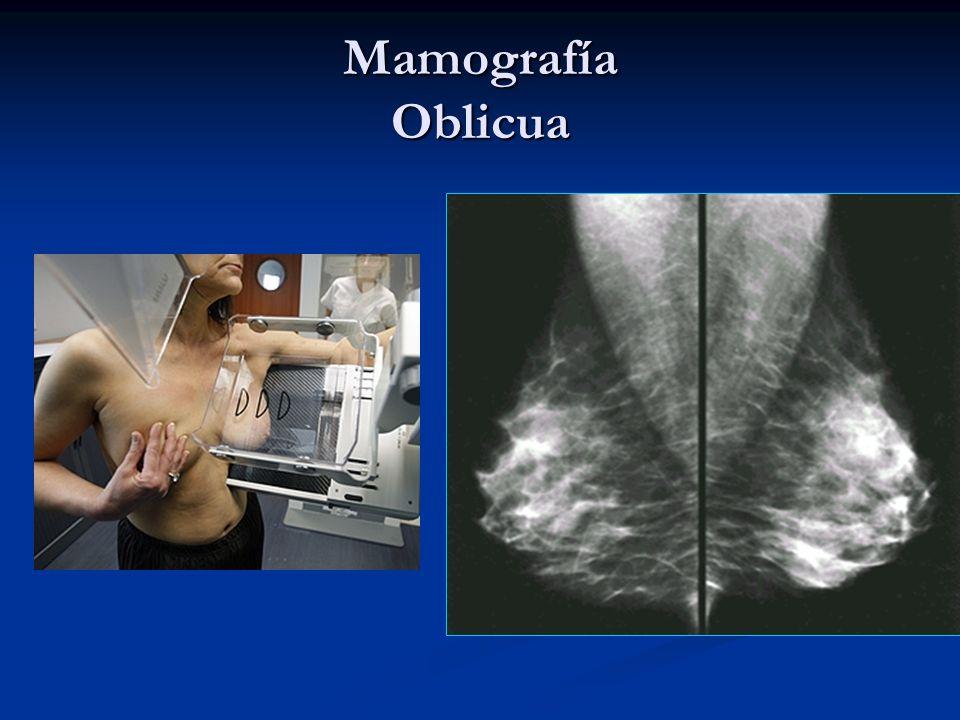 Mamografía Oblicua