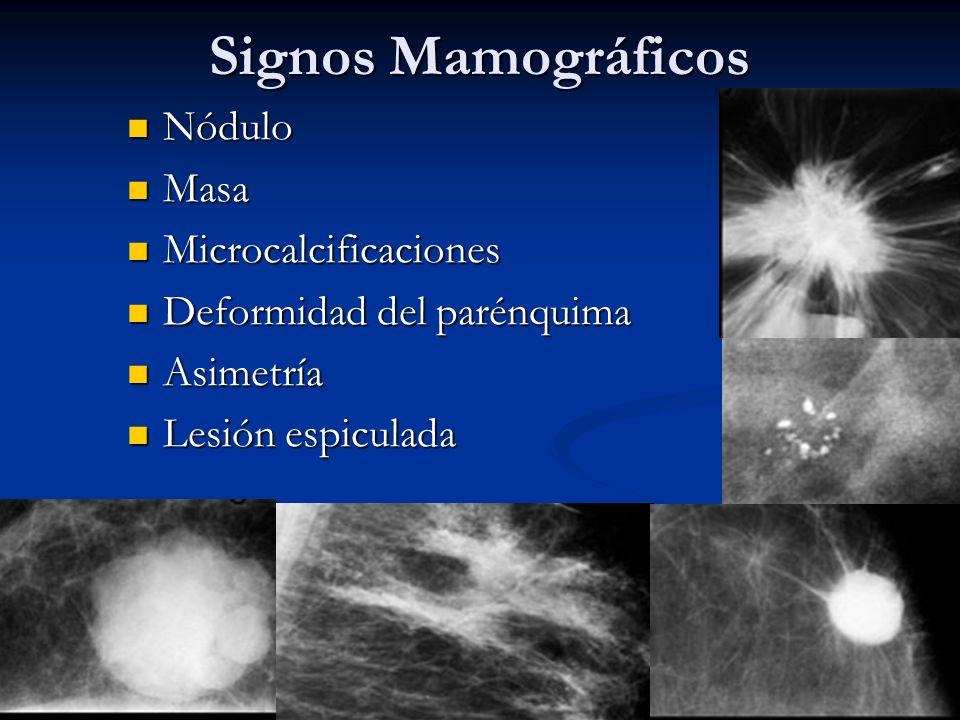 Signos Mamográficos Nódulo Nódulo Masa Masa Microcalcificaciones Microcalcificaciones Deformidad del parénquima Deformidad del parénquima Asimetría Asimetría Lesión espiculada Lesión espiculada