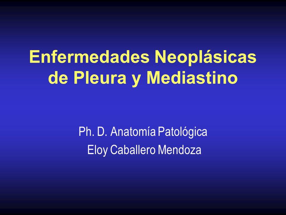 Neoplasia poco frecuente, en progresivo aumento Origen de la pleura visceral o parietal Asociado a la exposición de asbesto (amianto) en el 90% de los casos 25 a 45 años de exposición El tabaquismo asociado no incrementa su incidencia