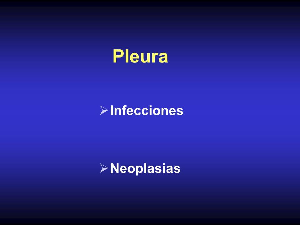 Derrame Pleural Manifestación frecuente de los procesos torácicos puede aparecer sólo o acompañado de patología pulmonar, mediastínica o de la pared torácica Inflamatorio No Inflamatorio