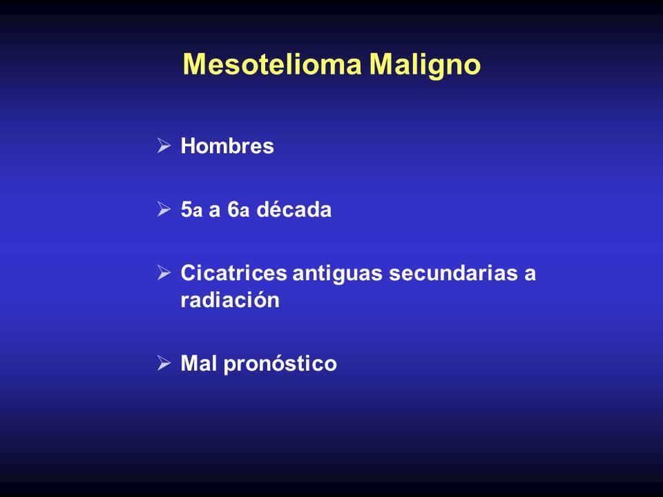 Mesotelioma Maligno Hombres 5 a a 6 a década Cicatrices antiguas secundarias a radiación Mal pronóstico