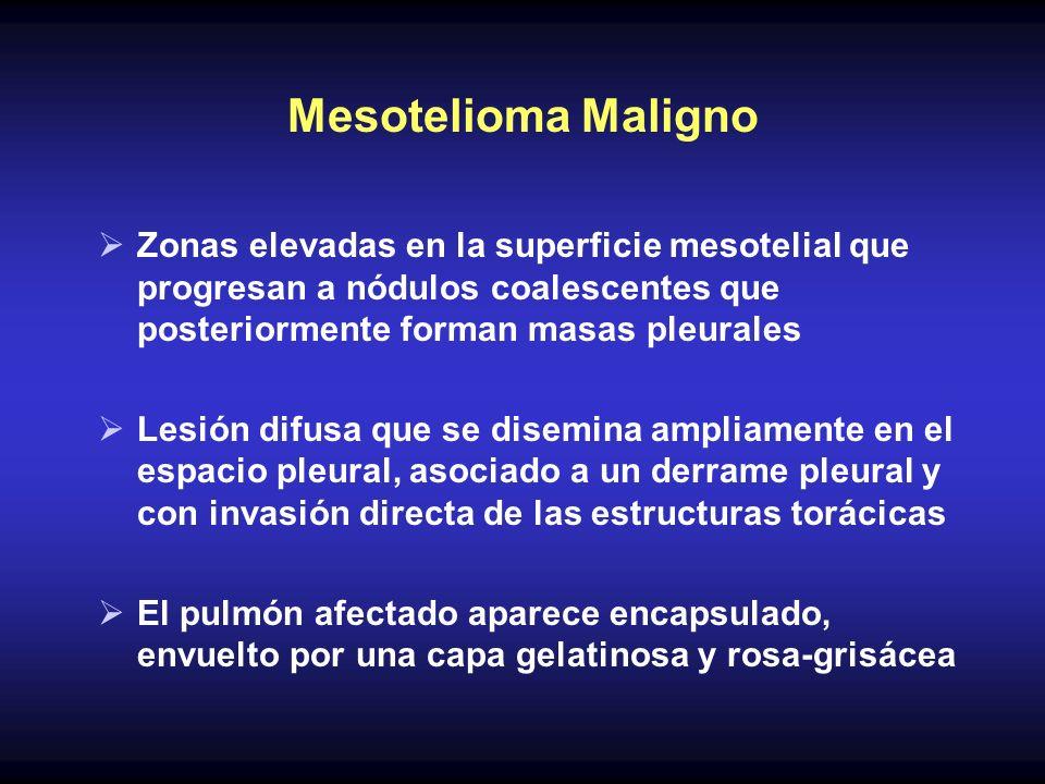 Mesotelioma Maligno Zonas elevadas en la superficie mesotelial que progresan a nódulos coalescentes que posteriormente forman masas pleurales Lesión d