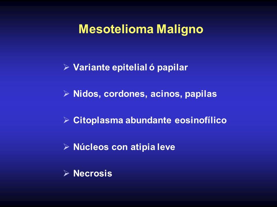 Mesotelioma Maligno Variante epitelial ó papilar Nidos, cordones, acinos, papilas Citoplasma abundante eosinofílico Núcleos con atipia leve Necrosis