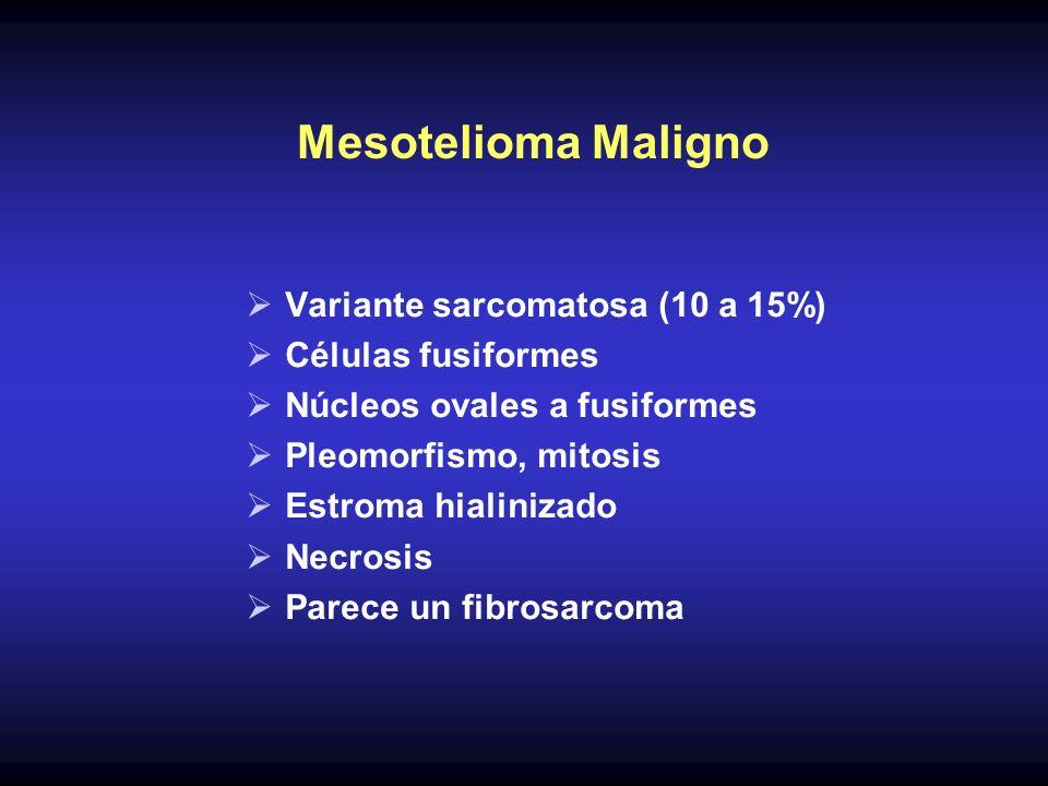 Mesotelioma Maligno Variante sarcomatosa (10 a 15%) Células fusiformes Núcleos ovales a fusiformes Pleomorfismo, mitosis Estroma hialinizado Necrosis