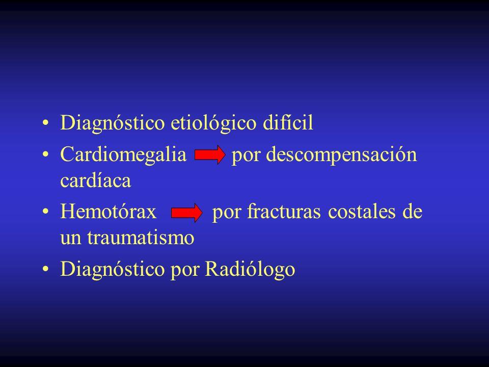 Diagnóstico etiológico difícil Cardiomegalia por descompensación cardíaca Hemotórax por fracturas costales de un traumatismo Diagnóstico por Radiólogo