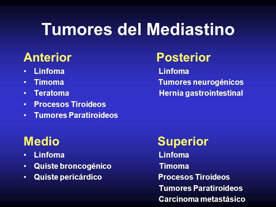 Tumores del Mediastino Anterior Posterior Linfoma Timoma Tumores neurogénicos Teratoma Hernia gastrointestinal Procesos Tiroideos Tumores Paratiroideo