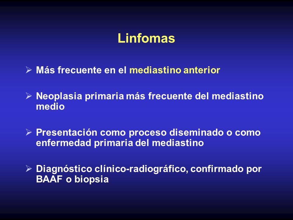 Linfomas Más frecuente en el mediastino anterior Neoplasia primaria más frecuente del mediastino medio Presentación como proceso diseminado o como enf