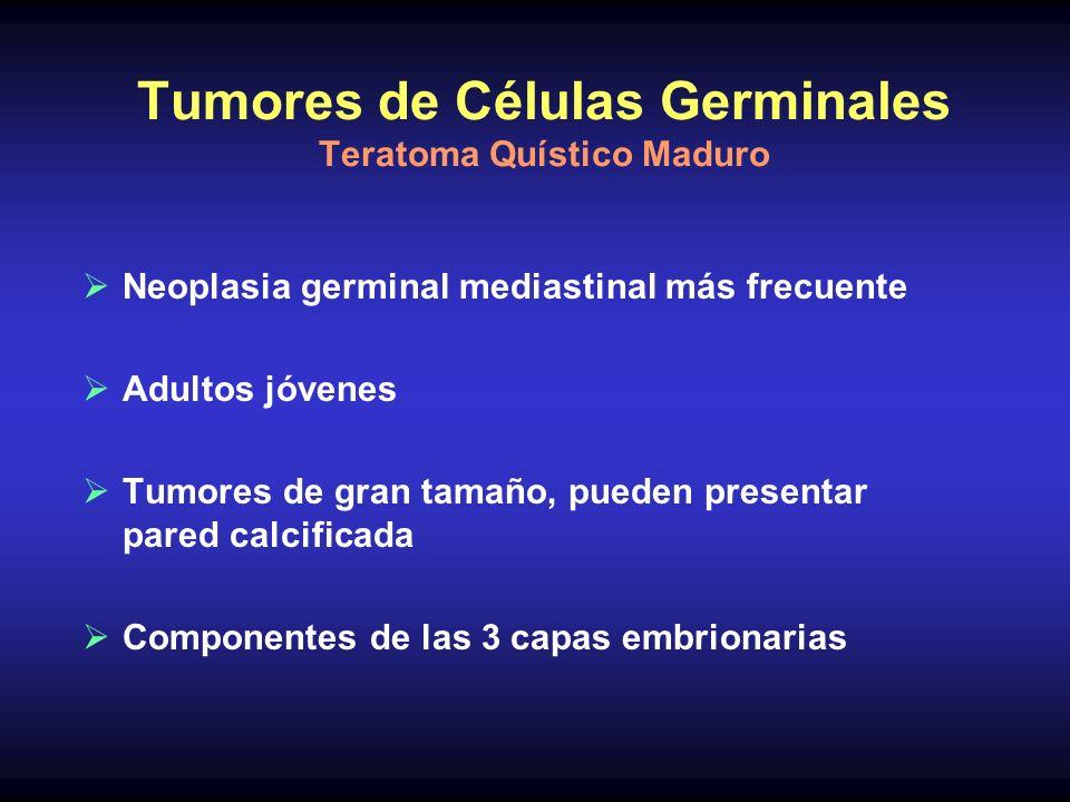 Tumores de Células Germinales Teratoma Quístico Maduro Neoplasia germinal mediastinal más frecuente Adultos jóvenes Tumores de gran tamaño, pueden pre