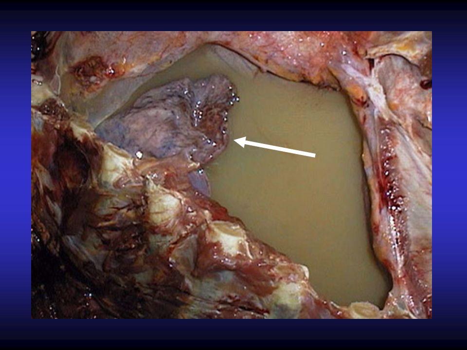 Mesotelioma Maligno Zonas elevadas en la superficie mesotelial que progresan a nódulos coalescentes que posteriormente forman masas pleurales Lesión difusa que se disemina ampliamente en el espacio pleural, asociado a un derrame pleural y con invasión directa de las estructuras torácicas El pulmón afectado aparece encapsulado, envuelto por una capa gelatinosa y rosa-grisácea