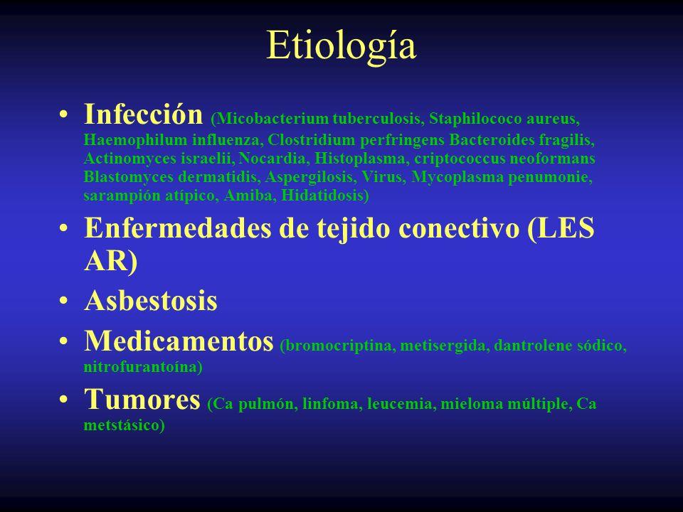 Tumores Pleurales Secundarios Pueden ser carcinomas o sarcomas Lo habitual son numerosos tumores Disnea, tos, dolor torácico, asintomáticos