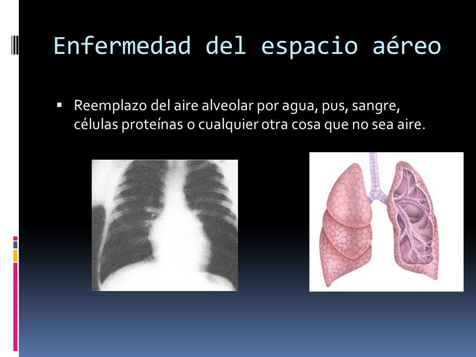 Patrón alveolar no circunscrito Infiltrado alveolar no circunscrito presenta bordes irregulares y es causada por bronconeumonía, neumonía micotica o por radiacion