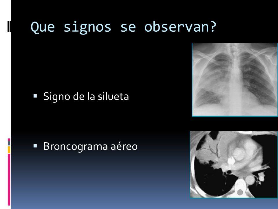 Derrame pleural derecho Causas mas comunes: Enfermedades abdominales Artritis reumatoide Obstrucción del conducto torácico proximal