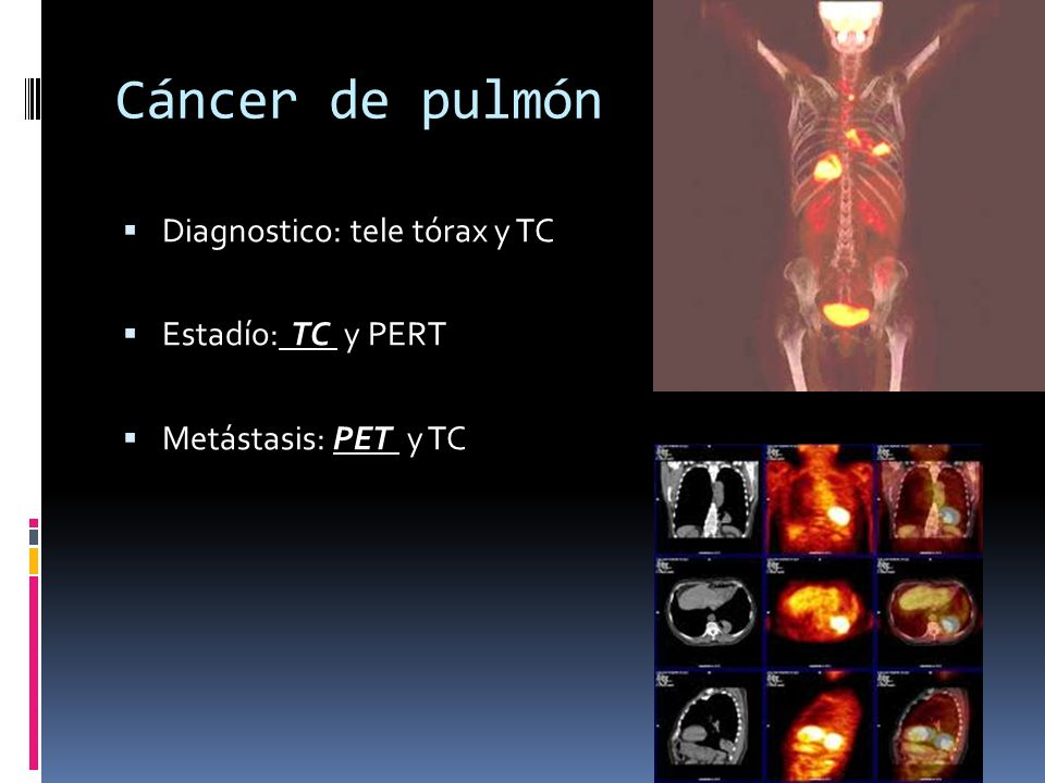 Cáncer de pulmón Diagnostico: tele tórax y TC Estadío: TC y PERT Metástasis: PET y TC