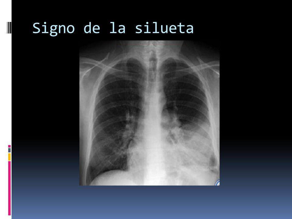 Broncograma aereo El broncograma aereo es un patrón el cual se ven los bronquios llenos de aire sobre un fondo (pulmón) sin aire.