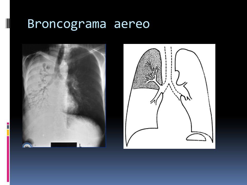 Infiltrados Patrón alveolar Consolidación : cuando el aire alveolar es reemplazado por células o por liquido.