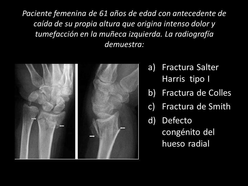 Paciente femenina de 61 años de edad con antecedente de caída de su propia altura que origina intenso dolor y tumefacción en la muñeca izquierda. La r