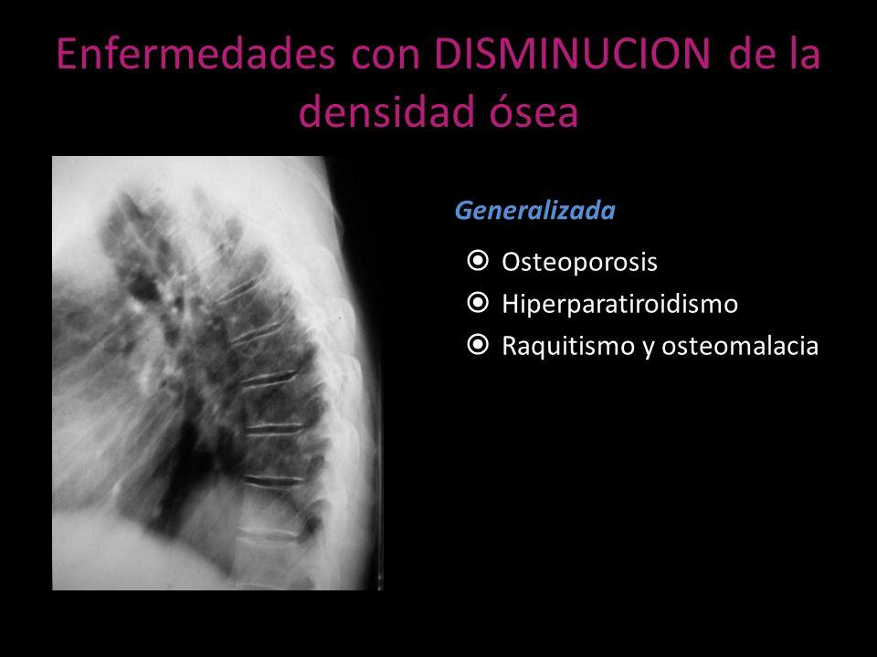 Enfermedades con DISMINUCION de la densidad ósea Generalizada Osteoporosis Hiperparatiroidismo Raquitismo y osteomalacia