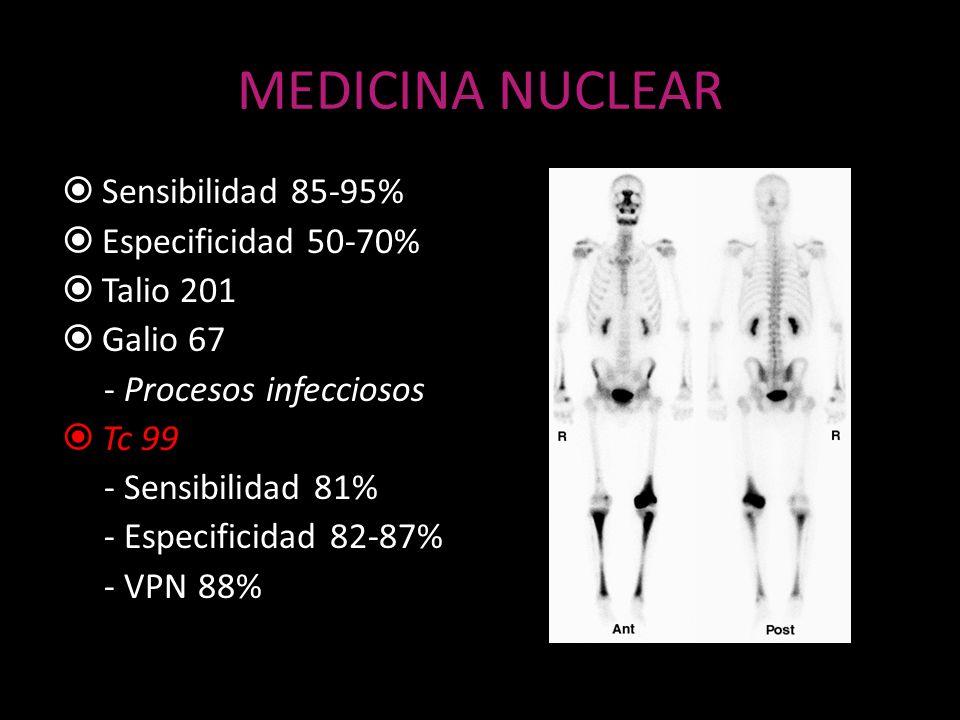 MEDICINA NUCLEAR Sensibilidad 85-95% Especificidad 50-70% Talio 201 Galio 67 - Procesos infecciosos Tc 99 - Sensibilidad 81% - Especificidad 82-87% -