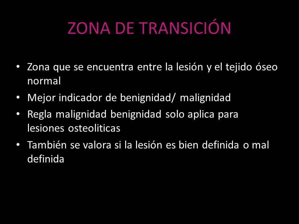 ZONA DE TRANSICIÓN Zona que se encuentra entre la lesión y el tejido óseo normal Mejor indicador de benignidad/ malignidad Regla malignidad benignidad
